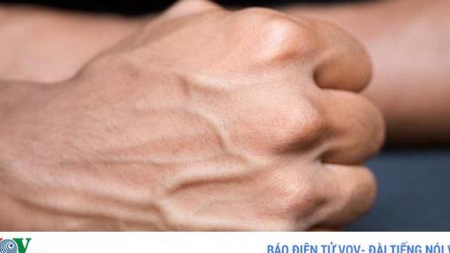 Cơ thể nổi gân xanh cảnh báo điều gì về sức khỏe?