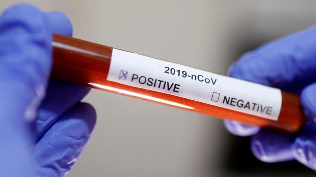Cả tầng chung cư tại TPHCM phải lấy mẫu xét nghiệm SARS-CoV-2: Bộ Y tế nói gì?