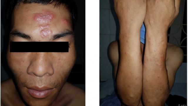 """Bệnh Phong đã dần bị lãng quên bất ngờ """"tái xuất"""" ở Lạng Sơn"""