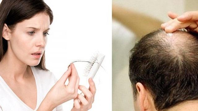 """3 """"thủ phạm"""" rụng tóc: người bị phải nhớ nguyên nhân còn điều trị"""