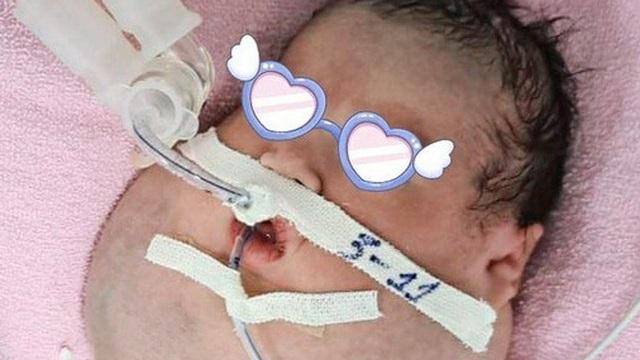 TP HCM: Bé trai mới sinh có khuôn mặt to khó tưởng