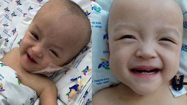 Hình ảnh vô cùng đáng yêu của bé Trúc Nhi, Diệu Nhi sau ca mổ tách 20 ngày