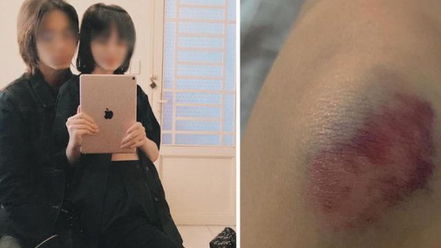 Mẫu ảnh Sài Gòn tố bị đánh đập và chửi bới vì ghen tuông, bạn trai photographer lên tiếng