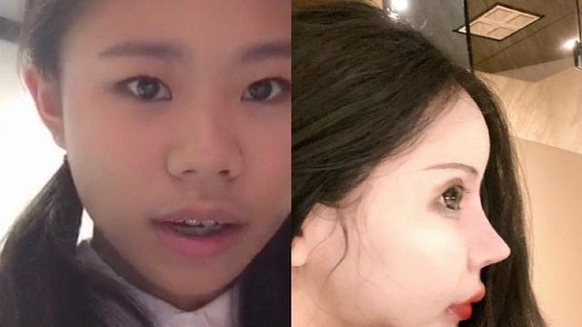 Sốc nặng vì nhan sắc của cô gái cắn răng chịu đau phẫu thuật thẩm mỹ 100 lần để giống búp bê