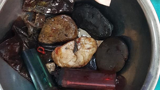 Hết nội soi rồi mổ dạ dày, bác sĩ BV Việt Đức kinh ngạc thấy dao lam, bật lửa, hạt bàng