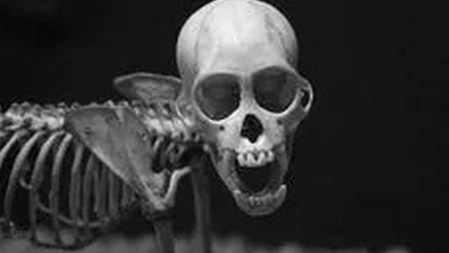 Những căn bệnh di truyền ở con người đáng sợ và kinh khủng nhất từng được khoa học biết đến