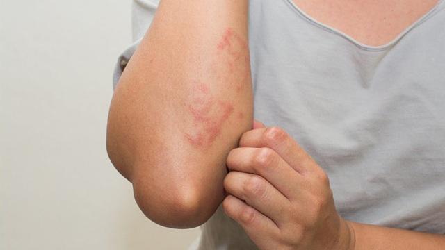 Bệnh thận nguy hiểm vì gây mất chức năng vĩnh viễn: BS khuyến cáo 10 dấu hiệu sớm chớ bỏ qua