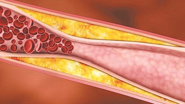 Tác hại của mỡ máu cao