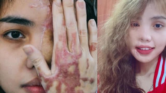 Cô gái bị chồng sắp cưới tạt axit hủy hoại nửa khuôn mặt và hành trình đau đớn để phục hồi nhan sắc 'ngoạn mục'