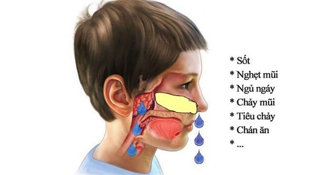 Sự thật về nạo VA gây suy giảm miễn dịch cho trẻ: Chuyên gia nói gì?