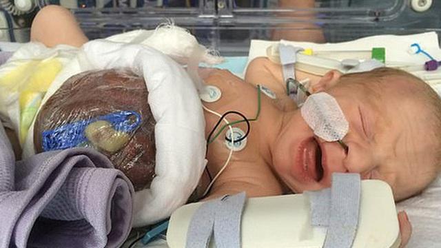 Bé trai sinh ra với nội tạng nằm ngoài cơ thể, đến mẹ đẻ cũng không dám nhìn thẳng gây thương cảm một thời giờ ra sao?
