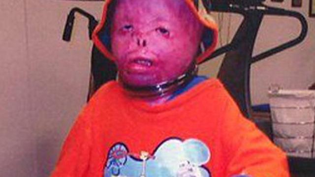 Cậu bé từng bị bỏng 95% cơ thể, trải qua 87 cuộc phẫu thuật đau đớn, bị gọi là người ngoài hành tinh bây giờ ra sao sau nhiều năm?