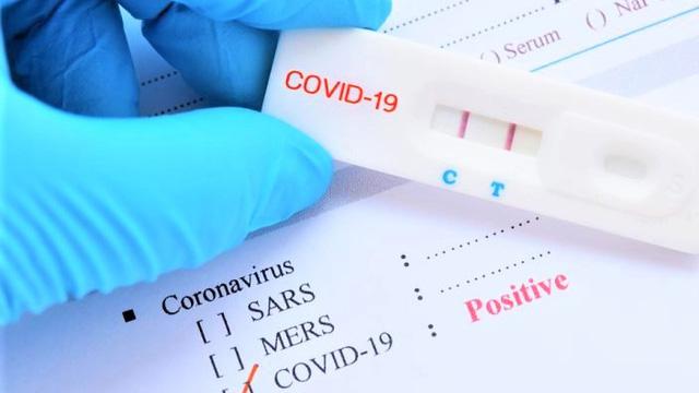 Bộ Y tế đề nghị doanh nghiệp báo cáo giá bán test xét nghiệm COVID-19