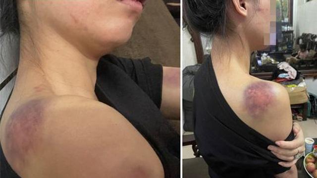 """Cô gái tố bị chồng đánh từ 23h đến 4h sáng hôm sau, bằng cả gậy sắt, người chồng đã """"lộ diện"""""""