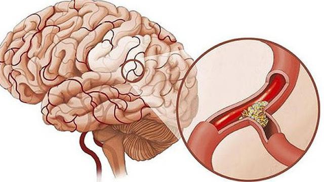 Nguyên nhân gây thiếu máu não