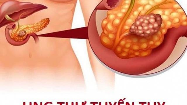 Các yếu tố làm tăng nguy cơ ung thư tụy