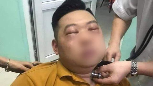 Thái 1 củ hành, nam thanh niên 25 tuổi bị sốc phản vệ, phù nề toàn mặt, hai mắt không thể mở