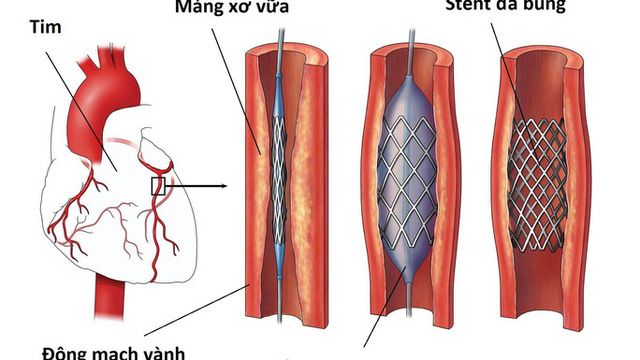Yêu cầu báo cáo việc bệnh nhân đặt stent động mạch vành từ năm 2015 đến nay