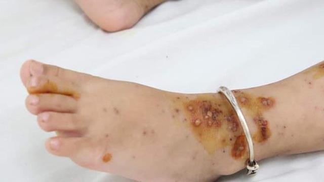 Bé 3 tuổi nhập viện do biến chứng bệnh thủy đậu