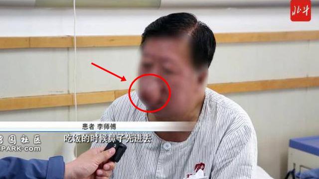 """Người đàn ông bỗng mọc chiếc """"mũi voi"""" trên mặt: Nguyên nhân là 1 thói quen xấu rất thường gặp ở cánh mày râu"""