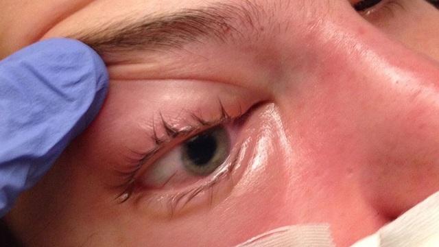 Chuyên gia Ấn Độ: Bệnh nhân mắc Covid-19 có thể bị nhiễm thêm virus hiếm, gây mù lòa, tử vong