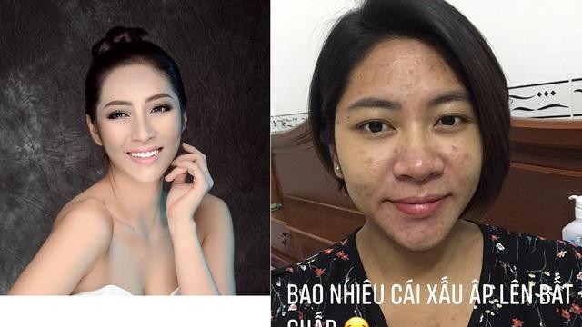 """Hoa hậu Đặng Thu Thảo chia sẻ loạt ảnh """"gây sốc"""", tiết lộ từng trầm cảm nặng"""