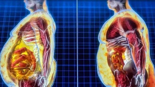 Tiến sĩ Việt ở Hà Lan 'giải oan' cho mỡ: 'Mỡ rất tốt, béo chưa hẳn đã xấu, vấn đề là nên ăn mỡ gì'