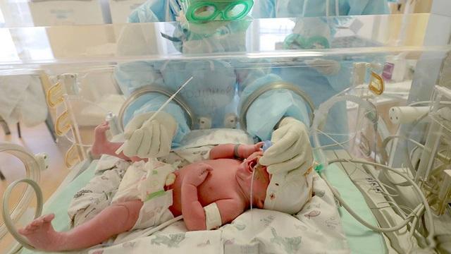 Cứu sống bé sơ sinh 18 ngày tuổi mắc COVID-19 nặng kèm viêm ruột hoại tử