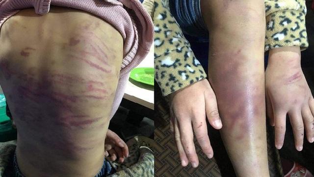 Đau xót với hàng loạt vụ trẻ em bị người thân bạo hành, có em trả giá bằng tính mạng