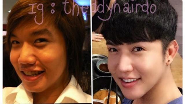 Hành trình 8 năm dao kéo của trai đẹp Thái Lan