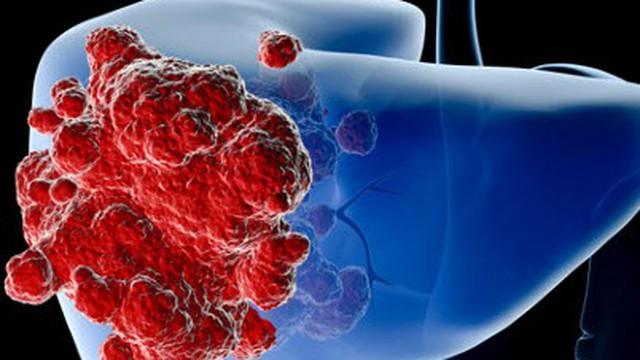 Ung thư gan giai đoạn đầu có chữa được không?
