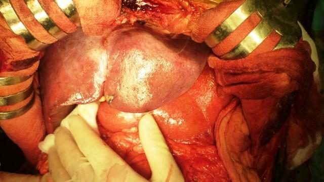 Dấu hiệu giúp bạn nhận ra bệnh ung thư gan từ rất sớm