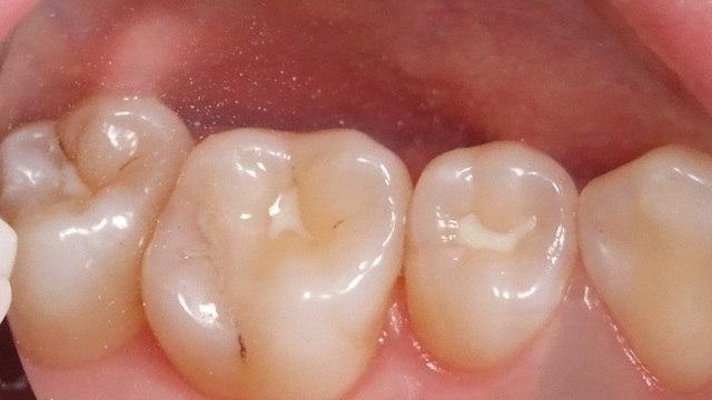 10 thói quen nhỏ gây hại cho răng cần chấm dứt ngay lập tức!