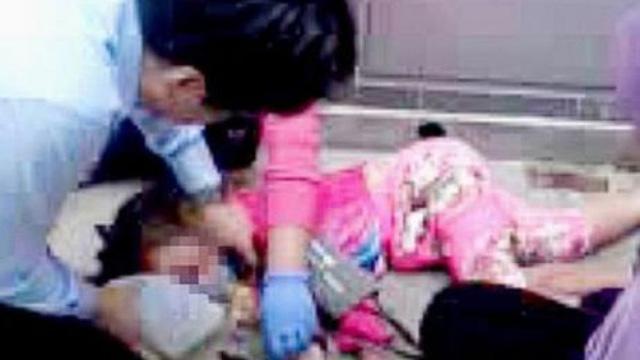 Bé gái rơi từ tầng 4 nguy kịch vì sai lầm của bà ngoại