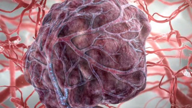 Tập thể dục có thể giúp ngăn ngừa 7 căn bệnh ung thư