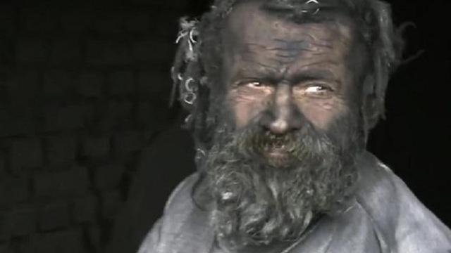 Bi kịch người đàn ông bẩn nhất châu Âu chết vì nghiện tro do chính mình đốt