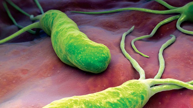 """Cả gia đình đều """"dính"""" vi khuẩn gây loét dạ dày: Đứng ngồi không yên vì sợ ung thư"""