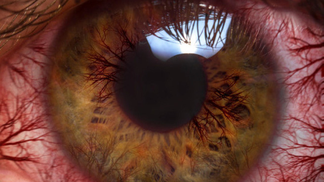 Nhìn vào lò vi sóng có khiến mắt của bạn trông giống thế này?