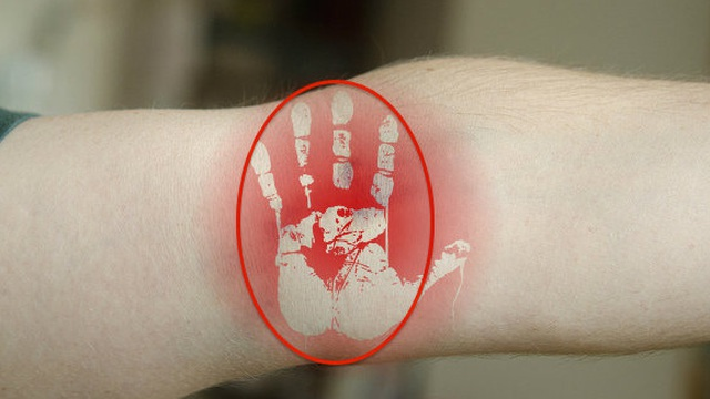 Vỗ lõm khuỷu tay: Tuyệt chiêu cứu người lên cơn đau tim ai cũng nên biết phòng khi cần