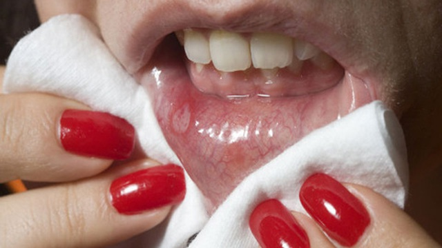 Vết lở loét ở miệng: Dấu hiệu của một số căn bệnh nguy hiểm