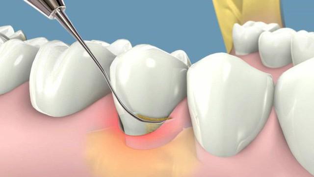 """Bạn bị đau răng: Hãy nhớ những gia vị """"giảm đau siêu tốc"""" an toàn, có sẵn trong bếp"""