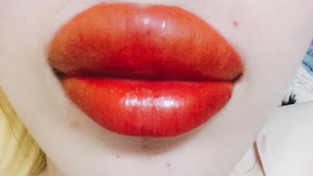Thẩm mỹ viện quảng cáo phun môi không sưng không đau, cô gái trẻ háo hức đi làm và cái kết đắng ngắt