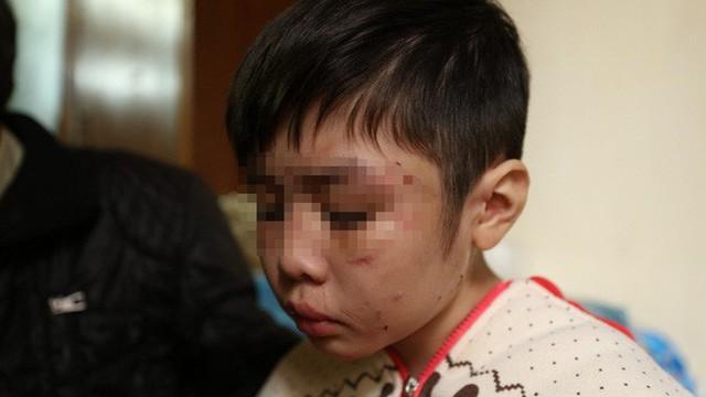 Cha đẻ đánh đập dã man con ruột 10 tuổi: Vì cháu nghịch ngợm, không chịu nghe lời