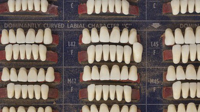 Góc kinh dị: Một đội thợ hồ ở Mỹ vừa tìm thấy khoảng 1000 chiếc răng người giấu trong tường