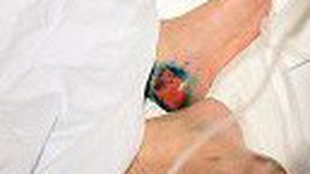 Cứ 32 giây lại có 1 người phải cắt cụt chân vì bệnh đái tháo đường