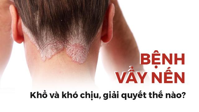 Bệnh vẩy nến có phải là vô phương cứu chữa: Hãy làm theo lời khuyên của chuyên gia da liễu