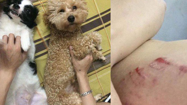 Tấm gương sen dũng cảm: Thanh niên đứng im cho Pitbull cắn để bảo vệ 2 chú chó nhỏ