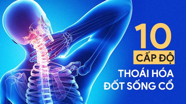 10 cấp độ thoái hóa đốt sống cổ: Hãy xem bạn bị mức mấy để xử lý trước khi bệnh nặng lên