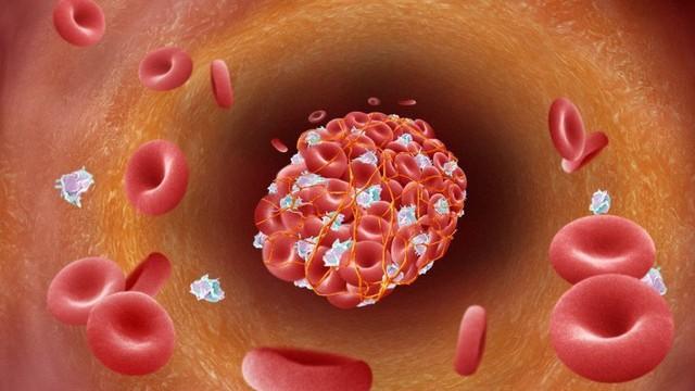 Nếu có những dấu hiệu này, hãy cẩn thận với bệnh bệnh huyết khối có thể gây tắc mạch máu
