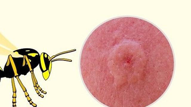 """Dấu hiệu """"nhận dạng"""" vết cắn do côn trùng"""
